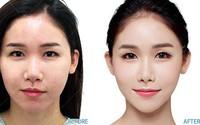 Cấy mỡ mặt Baby face – Xu hướng trẻ hóa gương mặt ưa chuộng 2018