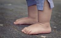 Dấu hiệu lạ ở bàn chân con cảnh báo hiện tượng mà 30% trẻ em Châu Á đang mắc phải