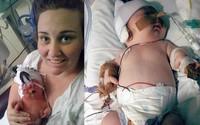 Kiên quyết từ chối yêu cầu chấm dứt thai kì của bác sĩ, bà mẹ không ngờ...