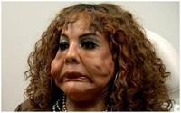 Niềm hạnh phúc đến với người phụ nữ chuyển giới từng biến dạng vì bị tiêm xi măng và keo dán lốp xe vào mặt