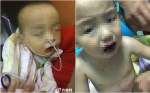 Tưởng nhầm chất tẩy là đường trắng, bé trai lấy ăn và nhập viện trong tình trạng nguy kịch