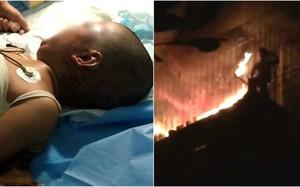 Bà quên tắt máy sưởi gây hỏa hoạn khiến cháu gái tử vong, cháu trai bỏng nặng