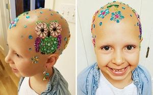 Đầu trọc lốc không có 1 sợi tóc, cô bé 7 tuổi này vẫn có cách khiến mình trở nên rực rỡ