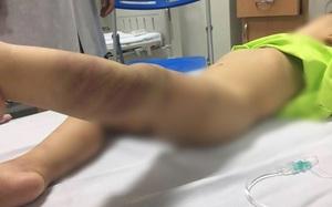 Hà Nội: Khởi tố vụ bé trai 14 tháng tuổi nghi bị bạo hành rồi bỏ rơi ở bệnh viện