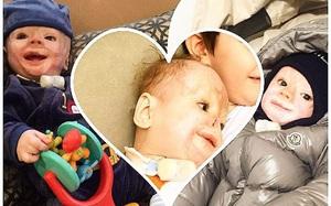 Vì một phút sơ sẩy của y tá, bé sơ sinh 3 ngày tuổi đã bị cướp mất đi hình hài