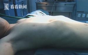 Bé trai bị lõm ngực được bác sĩ chẩn đoán là thiếu canxi nhưng sự thật lại trầm trọng hơn thế