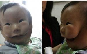 """""""Cậu bé hai mặt"""" lúc nào cũng như đang đeo mặt nạ từ lúc mới sinh"""
