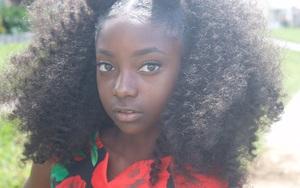 Cô bé bị bắt nạt vì da đen đổi đời nhờ mạng xã hội