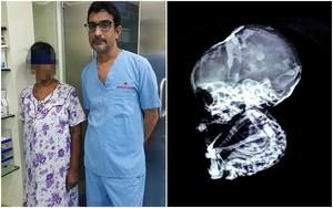 15 năm sau khi phá thai, bà mẹ sốc nặng khi phát hiện con vẫn còn trong bụng