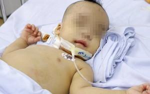 TP.HCM: Bé trai 1 tuổi sốc nhiễm trùng nặng, tiên lượng tử vong 99% được cứu sống