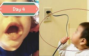Bé gái 19 tháng tuổi bị phỏng điện suýt mất cả đôi môi vì thói quen vứt sạc điện thoại lung tung của bố mẹ