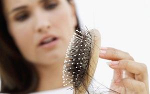 """Mùa rụng tóc, nấm da đầu và gàu đã đến, chị em cần bỏ túi """"phòng thân"""" công thức gội đầu siêu sạch này nhé!"""