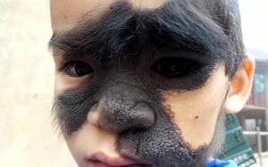 """Vụ bé trai bị u sắc tố bẩm sinh có khuôn mặt như """"người rừng"""": Đã có nhà hảo tâm nhận đưa bé đi trị bệnh"""