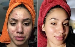 """Mặt """"tan nát"""" vì nhiều mụn, cô nàng này vẫn lấy lại làn da mịn màng không tì vết nhờ bí quyết chăm sóc da """"siêu rẻ, siêu dễ"""""""