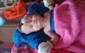 Bé gái 2 tháng tuổi bị khuyết não và hộp sọ bẩm sinh chống chọi tử thần từng giây
