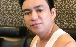 Bác sĩ Chiêm Quốc Thái bị đuổi chém giữa phố đi bộ Nguyễn Huệ, nghi liên quan đến tranh chấp với vợ cũ