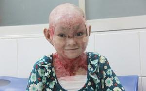 Cô gái bị lở loét khắp người đem tiền chữa bệnh đi xây cầu cho người nghèo đã nhận được hơn 200 triệu đồng