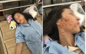 Đang xem xét khởi tố vụ án và bị can vụ đánh ghen, đổ mắm ớt lên chủ tiệm spa ở Thanh Hóa