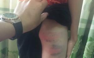 Vụ mẹ kế nghi bạo hành cháu bé 12 tuổi đến nhập viện ở Nghệ An: Công an vào cuộc, đang lấy lời khai hai bên liên quan