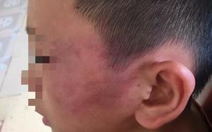 Bé trai 12 tuổi nghi bị mẹ kế bạo hành ở Nghệ An vẫn chưa hết sợ hãi khi nhắc tới chuyện về nhà