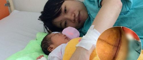 Kiêng cữ quá kĩ sau sinh, bà mẹ trẻ bị nhiễm trùng vết mổ đẻ phải điều trị cả tháng trời