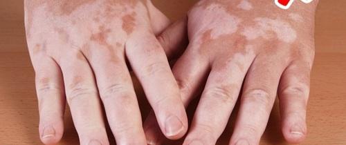 Nhìn biểu hiện trên da có thể đoán biết 8 bệnh nguy hiểm