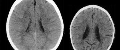 Ảnh chụp CT não của 2 em bé khác nhau khiến bố mẹ giật mình về cách dạy con