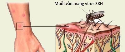Hà Nội: Ghi nhận một nữ sinh viên Học viện Ngân hàng tử vong do sốt xuất huyết