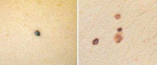 5 nguyên tắc cần nhớ để nhìn một cái là biết nốt ruồi đó có phải dấu hiệu ung thư da không