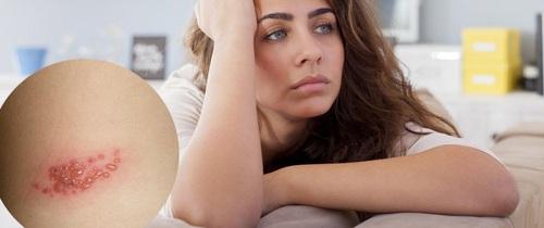 Bất ngờ bị zona tấn công ở tuổi 30, người phụ nữ cảnh báo nguyên nhân gây bệnh ai cũng có thể mắc