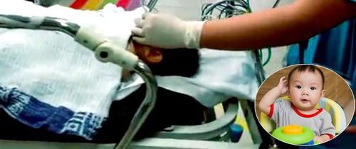 Hiểm họa từ xe tập đi khiến bé 8 tháng tuổi đuối nước, tính mạng bị đe dọa
