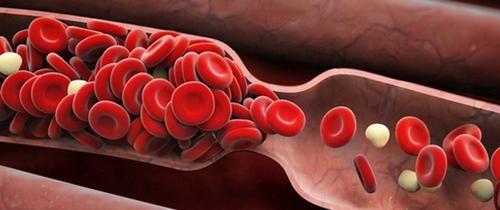 Nếu thấy 6 dấu hiệu này, rất có thể bạn đang bị cục máu đông trong cơ thể