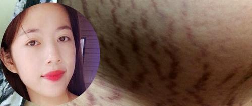"""Bà bầu 9x dũng cảm khoe cơ thể """"tan nát"""" vì rạn da khi mang thai"""