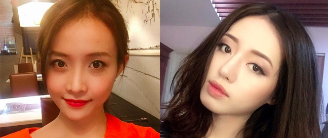 The Face Việt năm nào cũng có thí sinh phẫu thuật thẩm mỹ