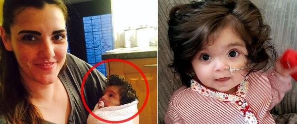 Ai cũng nghĩ bé gái 8 tháng tuổi này đội tóc giả cho tới khi biết sự thật...