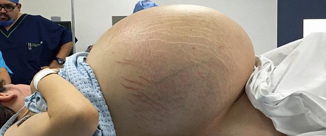 Người phụ nữ bụng to như mang bầu 10 em bé, bác sĩ sốc khi lấy ra thứ kinh khủng này