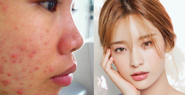 5 bước chăm sóc da sau khi nặn mụn để hạn chế tối đa tình trạng sẹo thâm