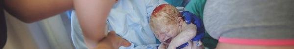 Thót tim chứng kiến bà mẹ mang song thai ngôi mông vượt cạn bằng cách sinh thường