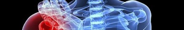 Những triệu chứng cảnh báo bệnh ung thư xương cần đi khám ngay