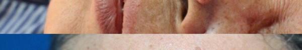 Bác sĩ da liễu lý giải nguy cơ ung thư da do tắm trắng