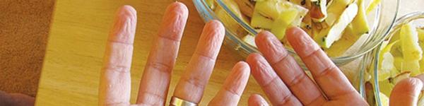 Nếu thường xuyên cắn da quanh móng tay, có thể bạn đang mắc một loại rối loạn tâm thần