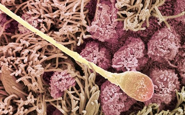 Clip: Cuộc cạnh tranh tàn khốc của hàng triệu tinh trùng