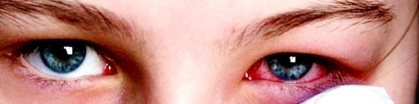 Bộ Y tế khuyến cáo dịch đau mắt đỏ đang có nguy cơ bùng phát
