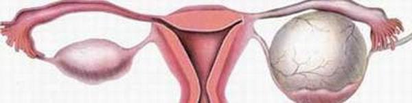 8 sự thật về hội chứng buồng trứng đa nang mà chị em chưa biết