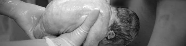 Chùm ảnh: Xúc động đến nghẹt thở về một ca sinh thường ngôi thai ngược
