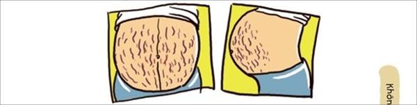 Sự thật phũ phàng về những vết rạn da trên bụng mẹ bầu