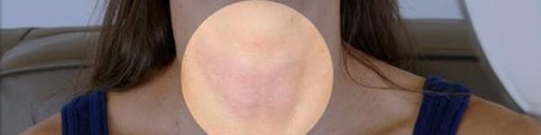 3 dấu hiệu rối loạn tuyến giáp có thể bạn không nhận ra
