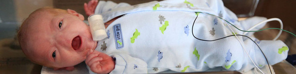Em bé bị dị tật bẩm sinh không có mũi may mắn được sinh ra khỏe mạnh
