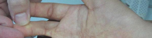 Phòng tránh di chứng bỏng gây sẹo co rút bàn tay ở trẻ em
