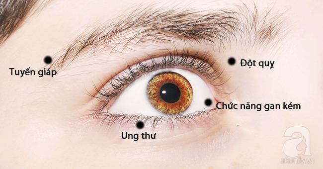 Nhận biết tình trạng sức khỏe qua những dấu hiệu của mắt - Ảnh 1.